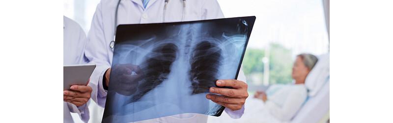 Пневмония: опасно ли воспаление лёгких для Вашей жизни?